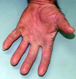 Fungus Infection in Diabetes