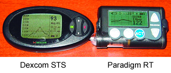 Dexcom STS and Paradigm RT screens compared
