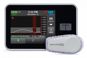 Tandem Pump and Dexcom Sensor