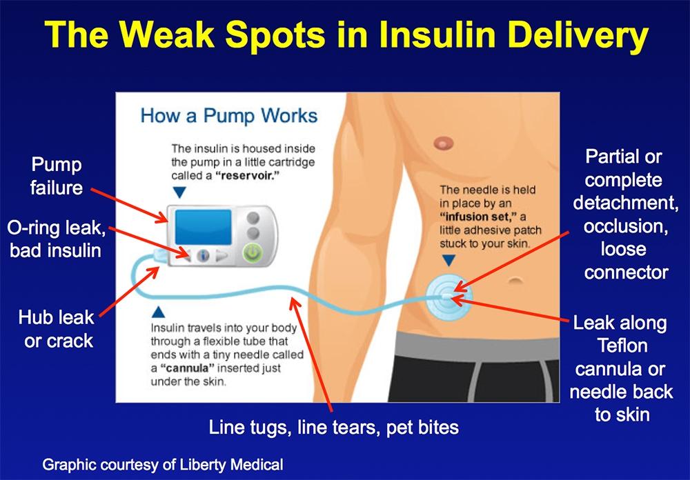 Weak Spots in Insulin Delivery