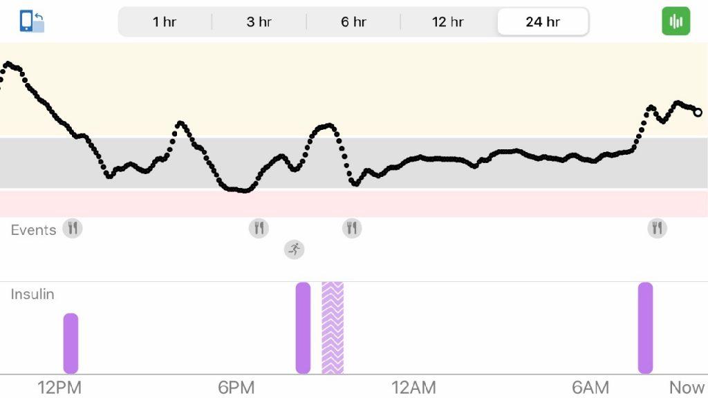 Dexcom 24 Hour Graph